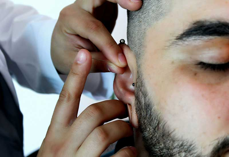 Acupunture in man's ear